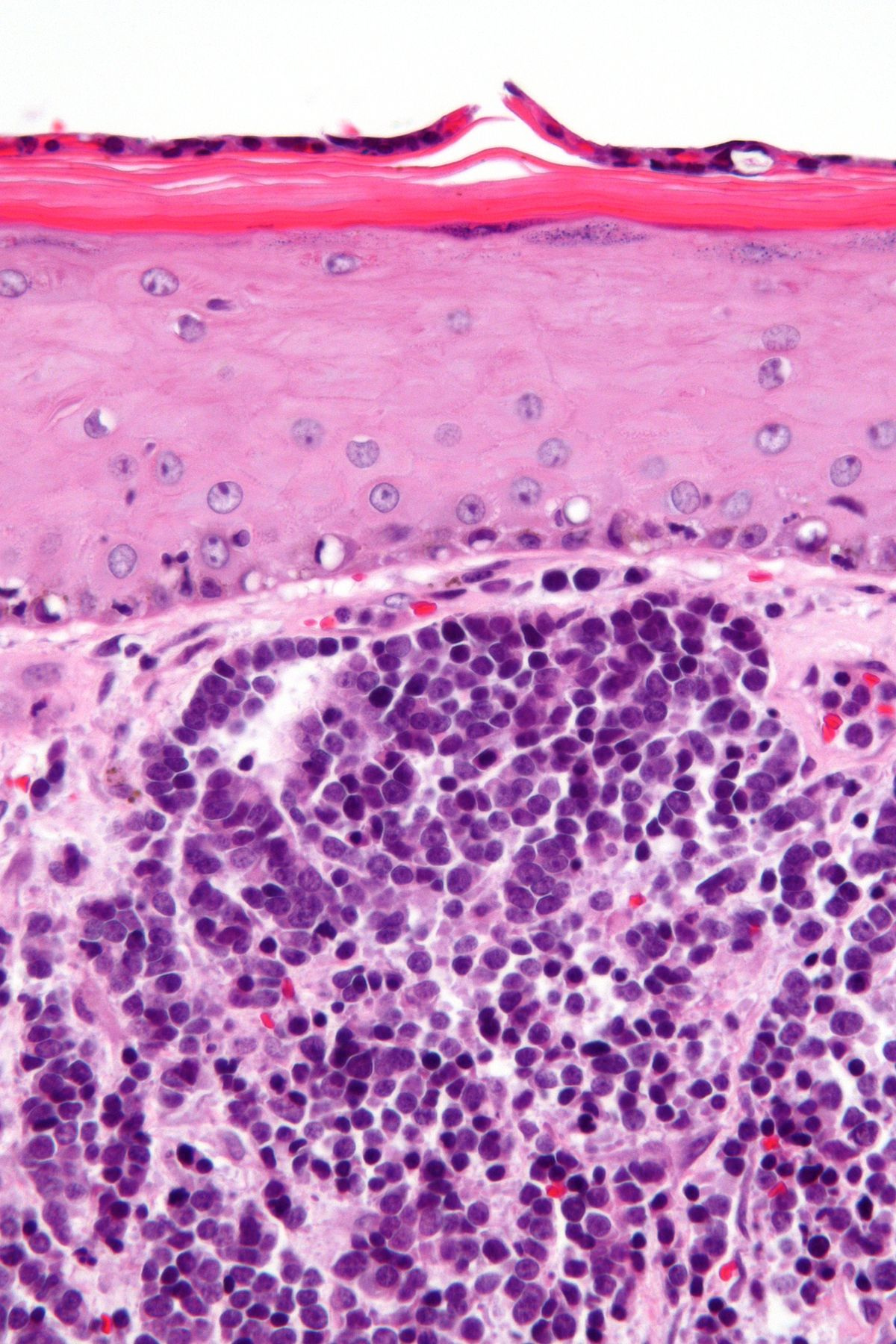 neuroendocrine cancer merkel cell