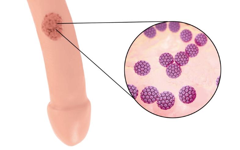 cancer cervical metastasis