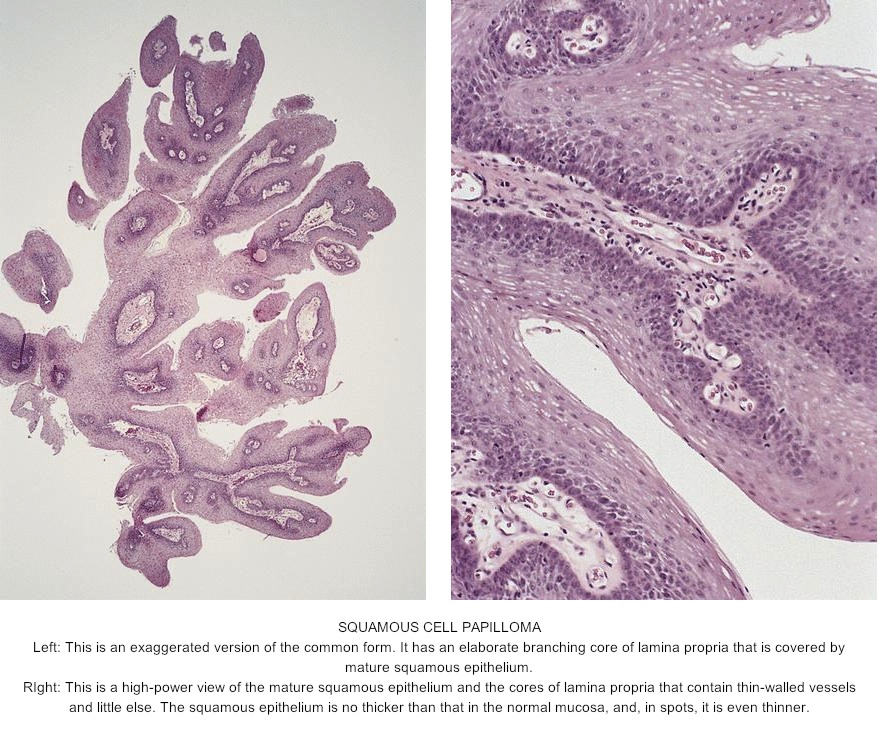 ovarian cancer peritoneal fluid hpv leading to throat cancer
