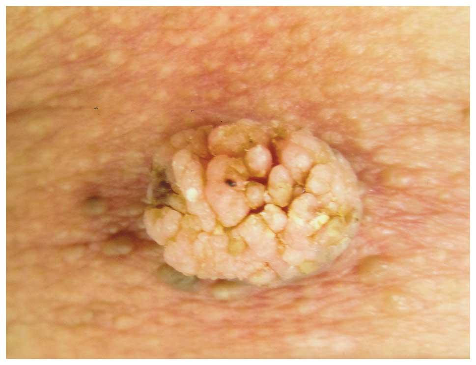 papillary verrucous lesion cancer san ductal invaziv