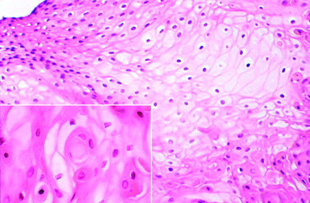 wart virus cytopathic changes transmission papillomavirus accouchement