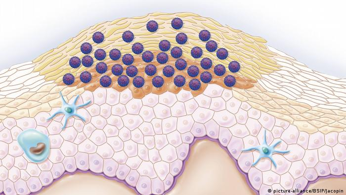 hpv mann medikamente papilloma virus 31 cura