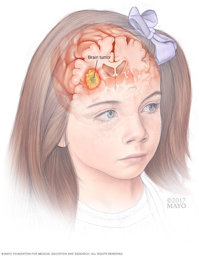 cancer cerebral pediatrico sintomi tumore papilloma virus