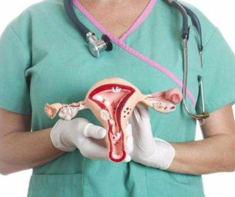 cancer ovarian stadiul 4 speranta de viata