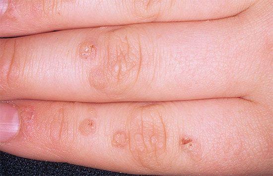 warts on hands adults cervical cancer testing