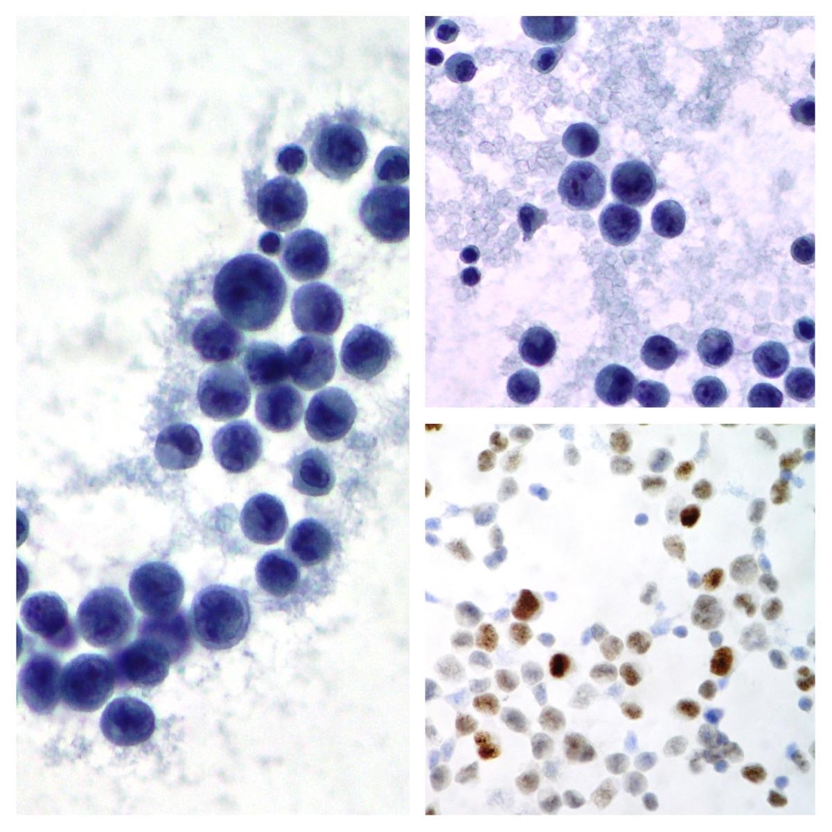 metastatic cancer pleural effusion cancerul ovarian doare