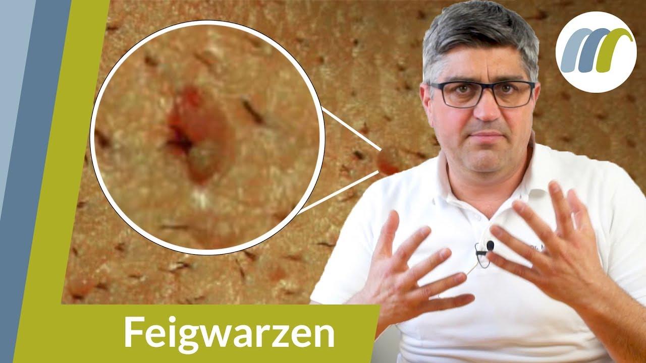 hpv behandlung mann dauer tratament impotriva oxiurilor