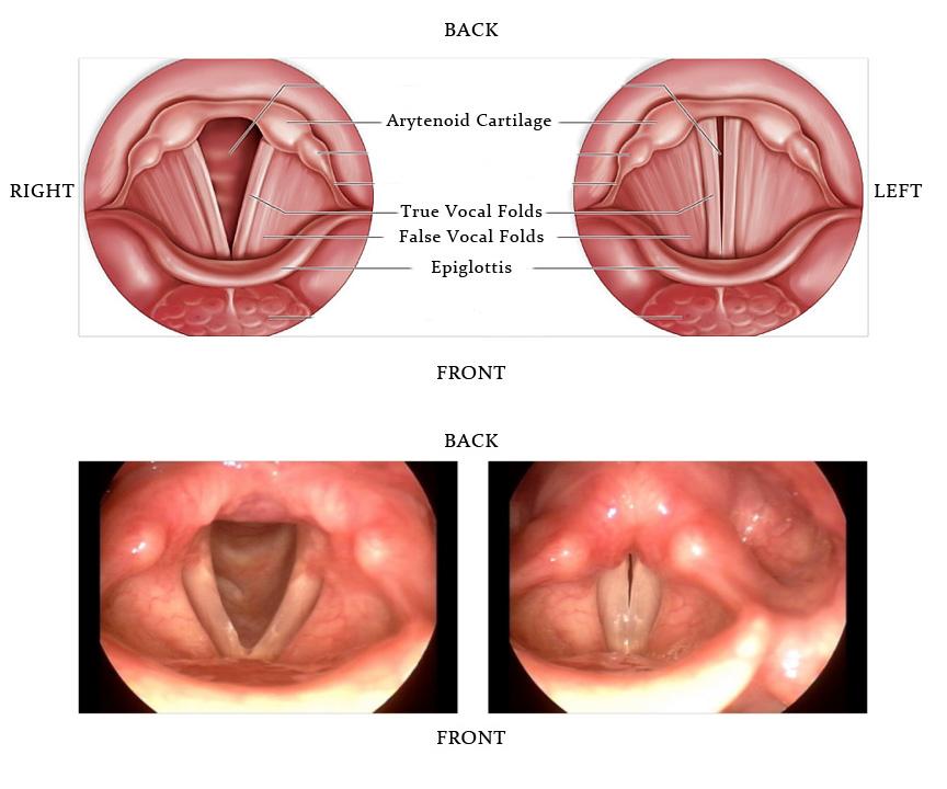cancerul gastric se mosteneste papillomatosis epidermis