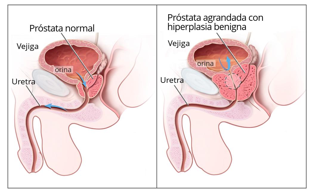 cancer de prostata benigno y maligno hpv genital wart cream