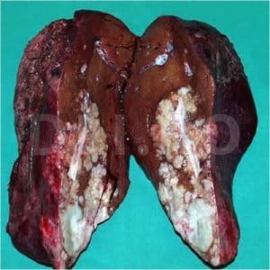 cancer la ficat in metastaza anthelmintic definition medical