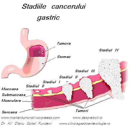 Semne şi simptome ale cancerului gastric | adventube.ro