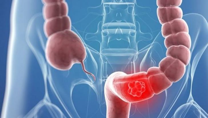 cancerul de colon se transmite ciuperci bune