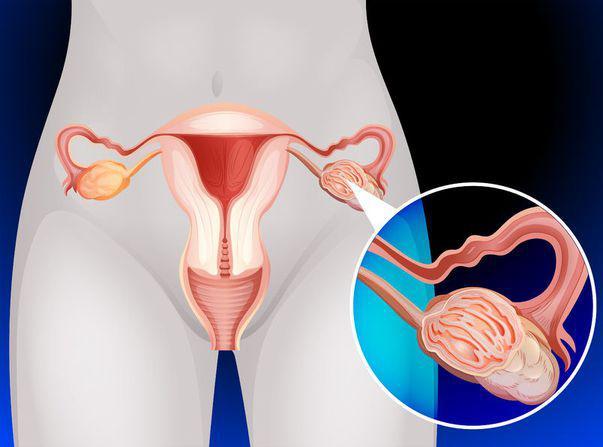 cancerul de ovare cancer de colon vertebral