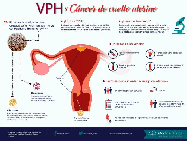 cancer de cuello uterino sin vph
