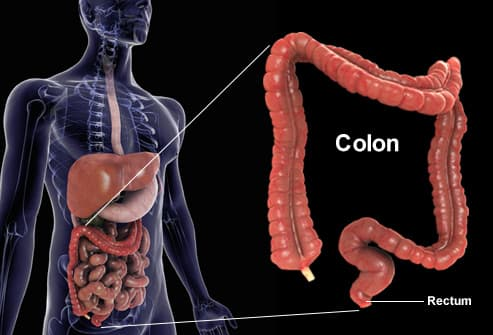 cauze cancer la colon hpv bocca cura