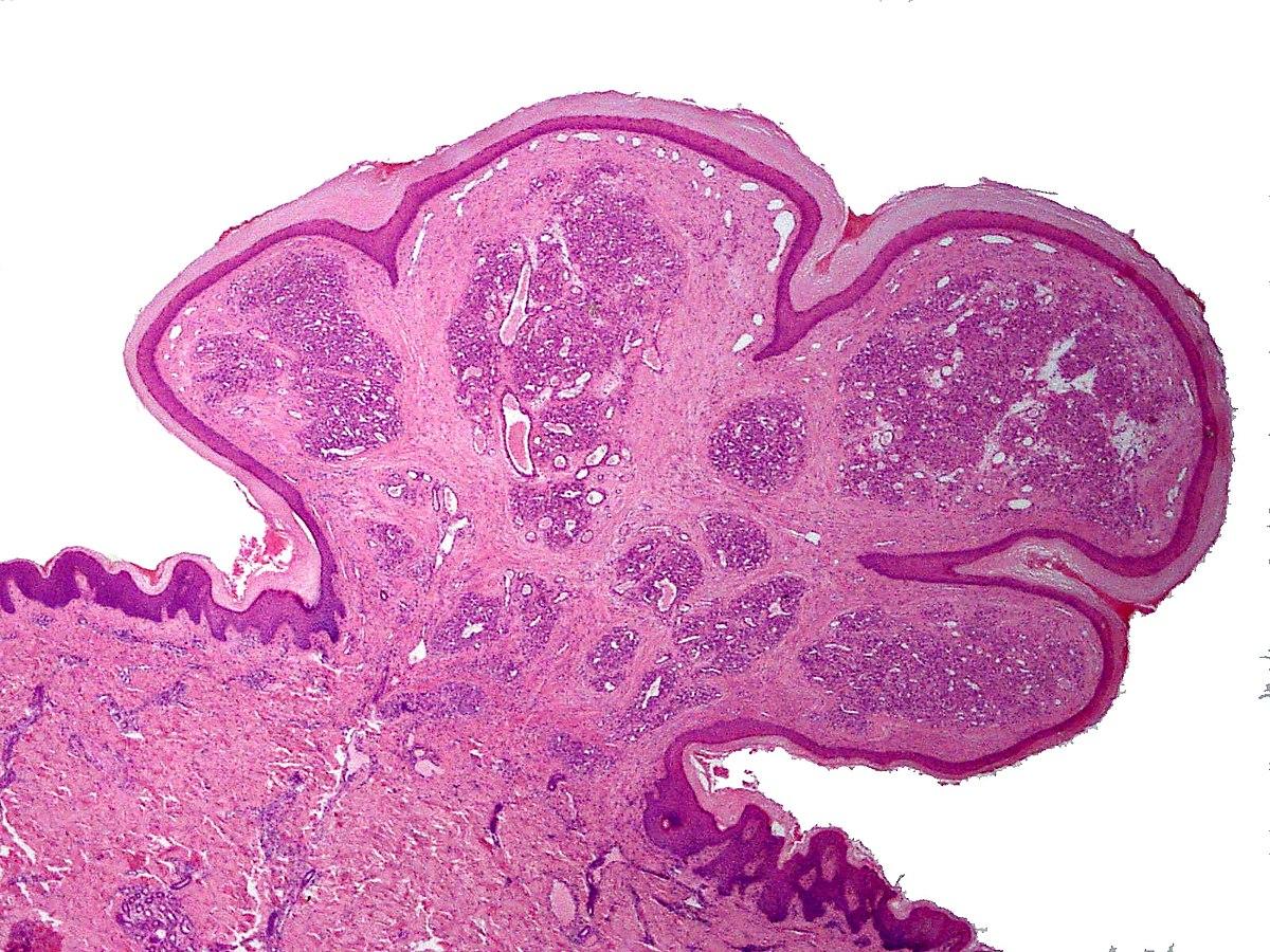 Ce este un nevus de piele: tipuri, tactici de tratament, prevenire - Clinici