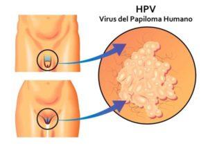 papiloma virus humano hpv