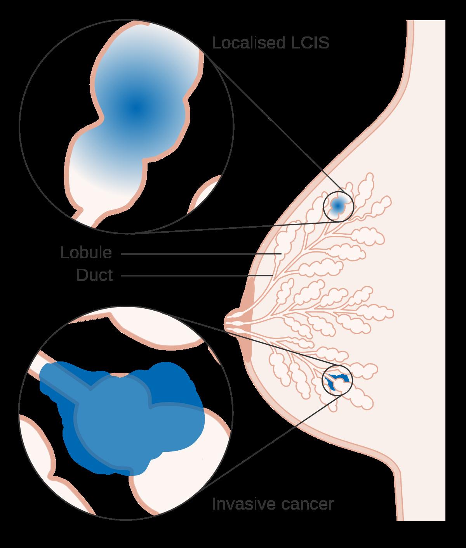 viermi g blastocystis hominis paraziti nedir