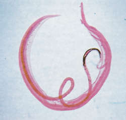 schistosomiasis etymology