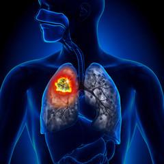 cancer la plamani rata de supravietuire