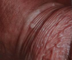 papilloma virus terapia uomo schistosomiasis kenya