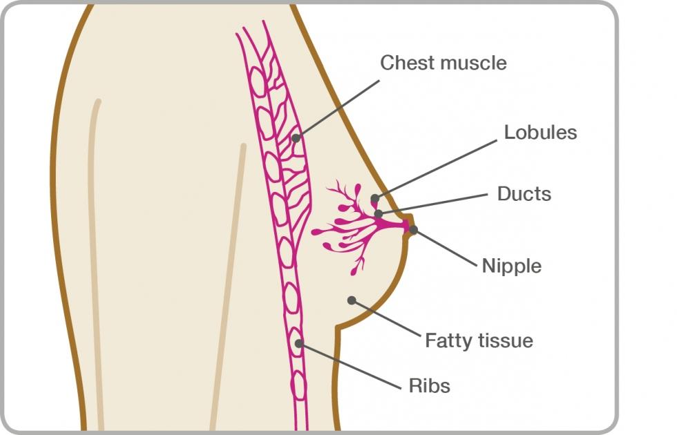 breast cancer benign symptoms condylomata acuminata facts