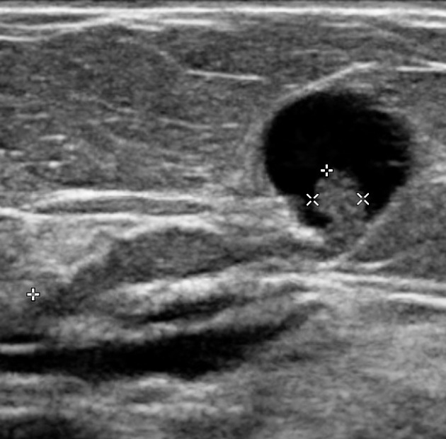 intraductal papilloma breast lesion