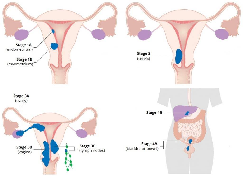 ovarian cancer vs ibs