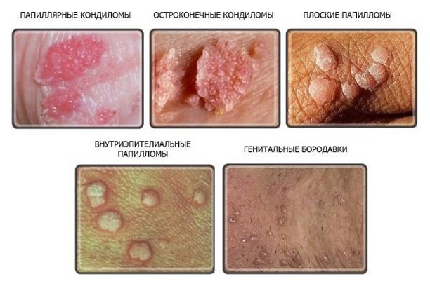 papiloma virus kod muskaraca papilloma verrucoso lingua