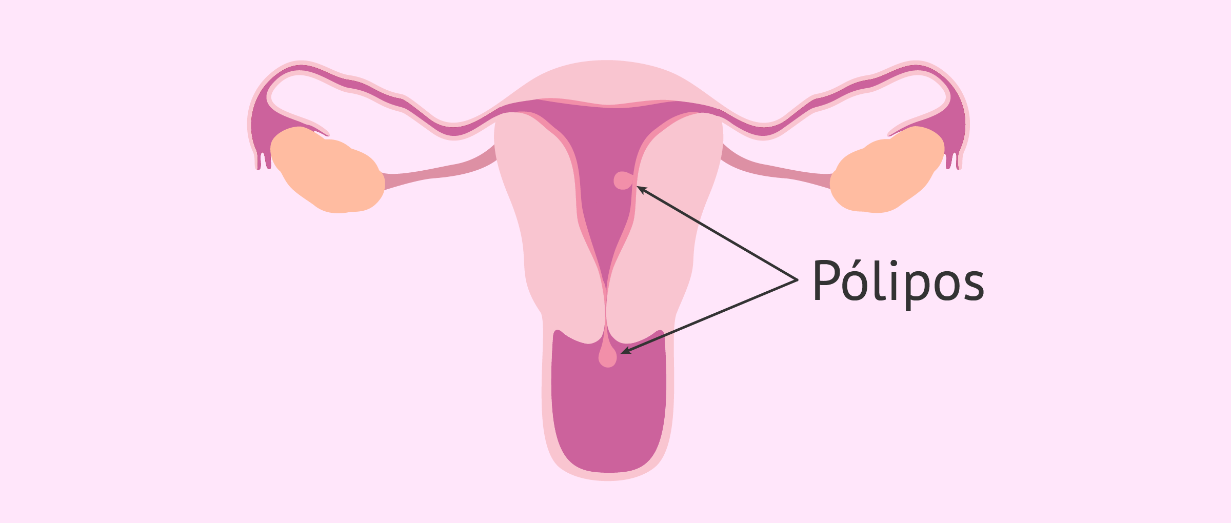 cancer endometrial mujer joven virus papiloma humano cura hombres
