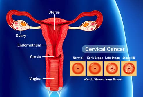 ductal papilloma breast hpv cancer colon