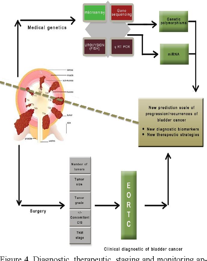 bladder cancer genetic factors