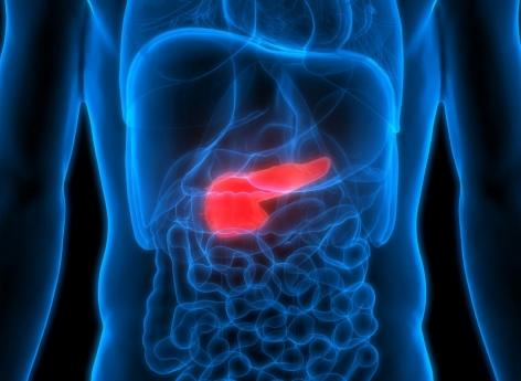 cancer pancreas diagnostique helminth infections and host immune regulation