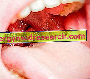 papilloma ugola tumore tratament usturime in gat