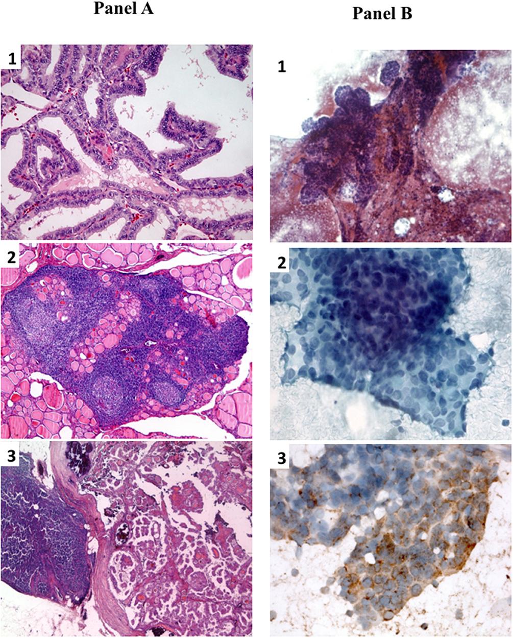 virus del papiloma tipo 1 hpv males vaccine
