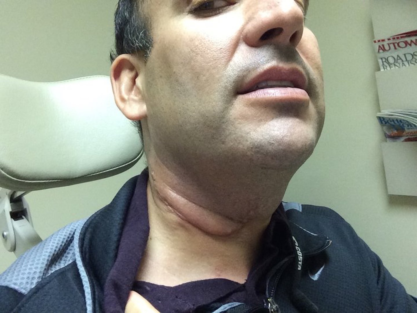 symptoms of hpv head and neck cancer