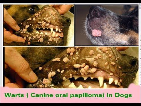 cancer renal maligno llagas en la boca por papiloma