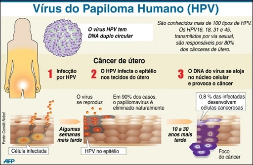 virus papiloma humano es cancer