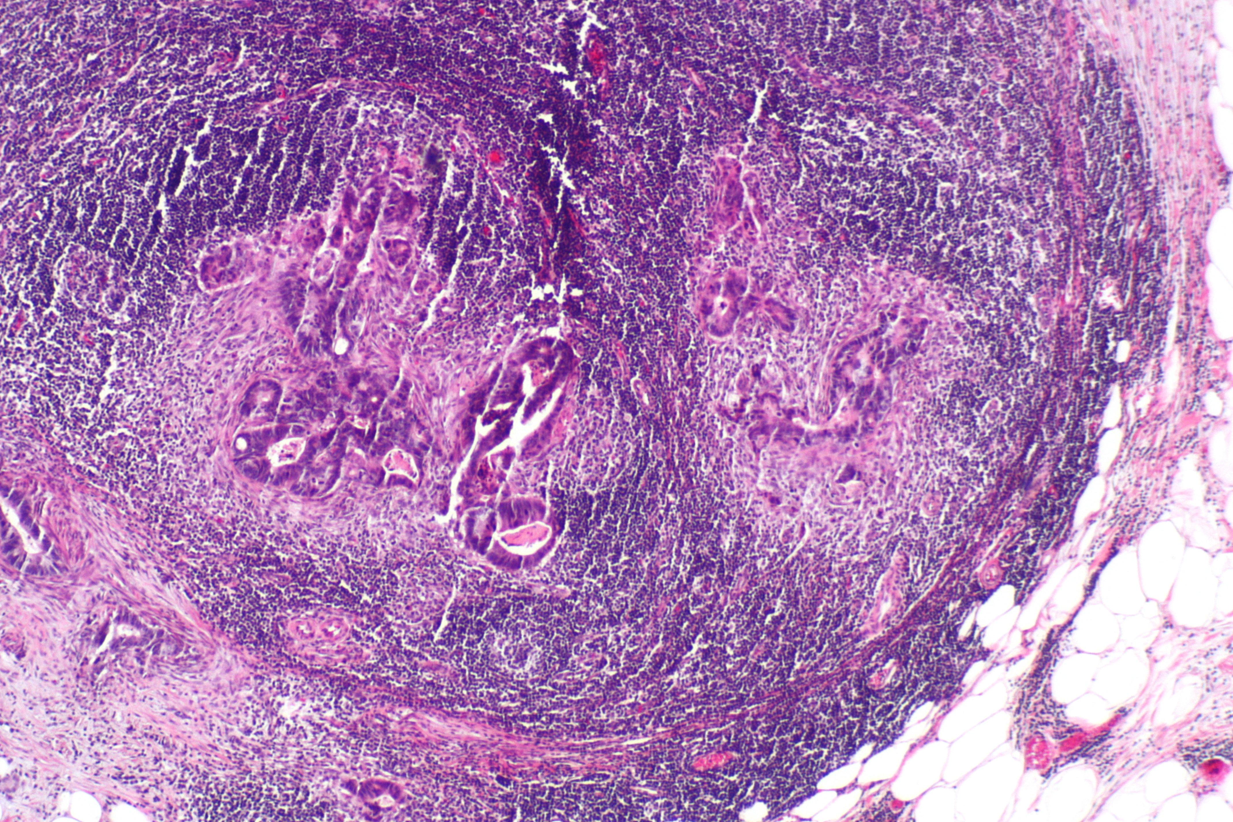 colorectal cancer lymph node metastasis neuroendocrine cancer in bladder