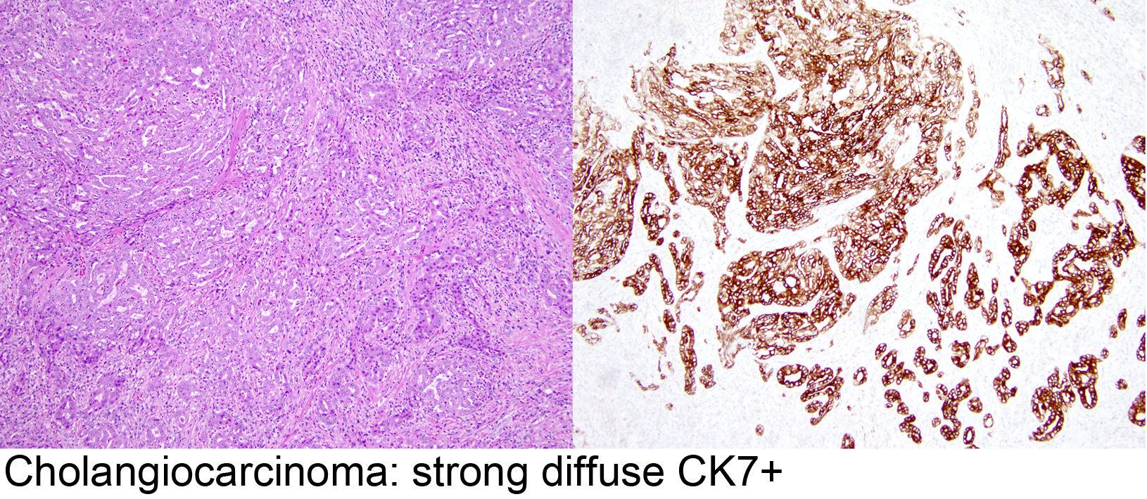 cancer renal definitie