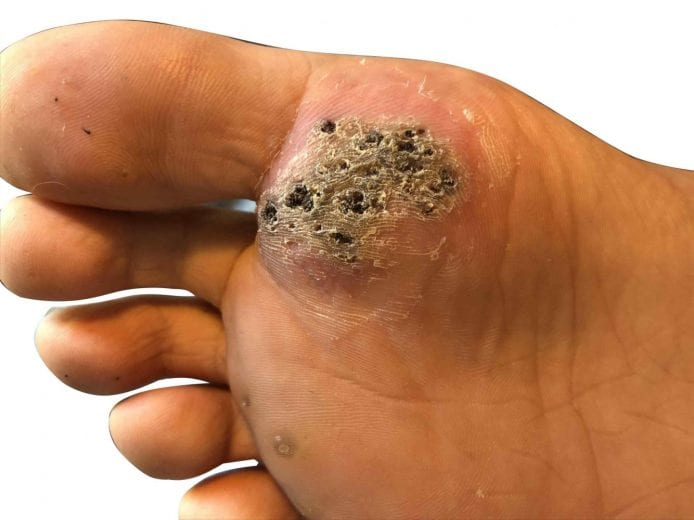wart on the foot