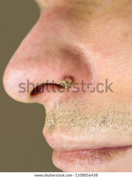 papilloma in nose