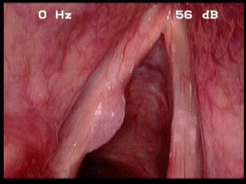 papiloma em laringe wart virus contagious