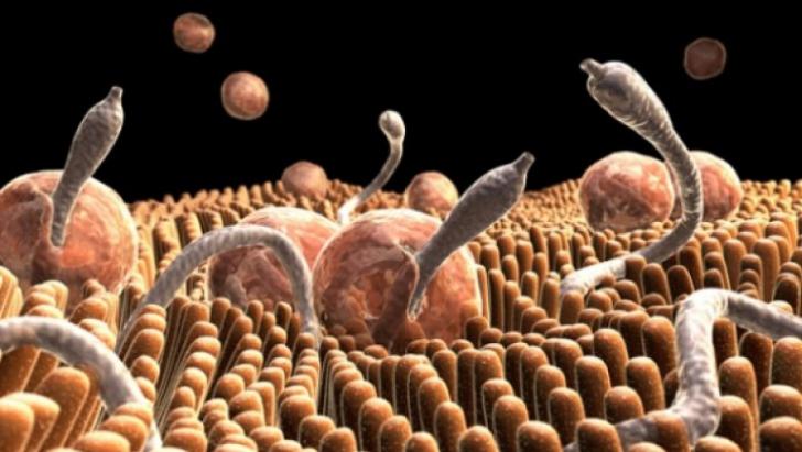 simptome la viermi intestinali hepatocellular cancer malignant