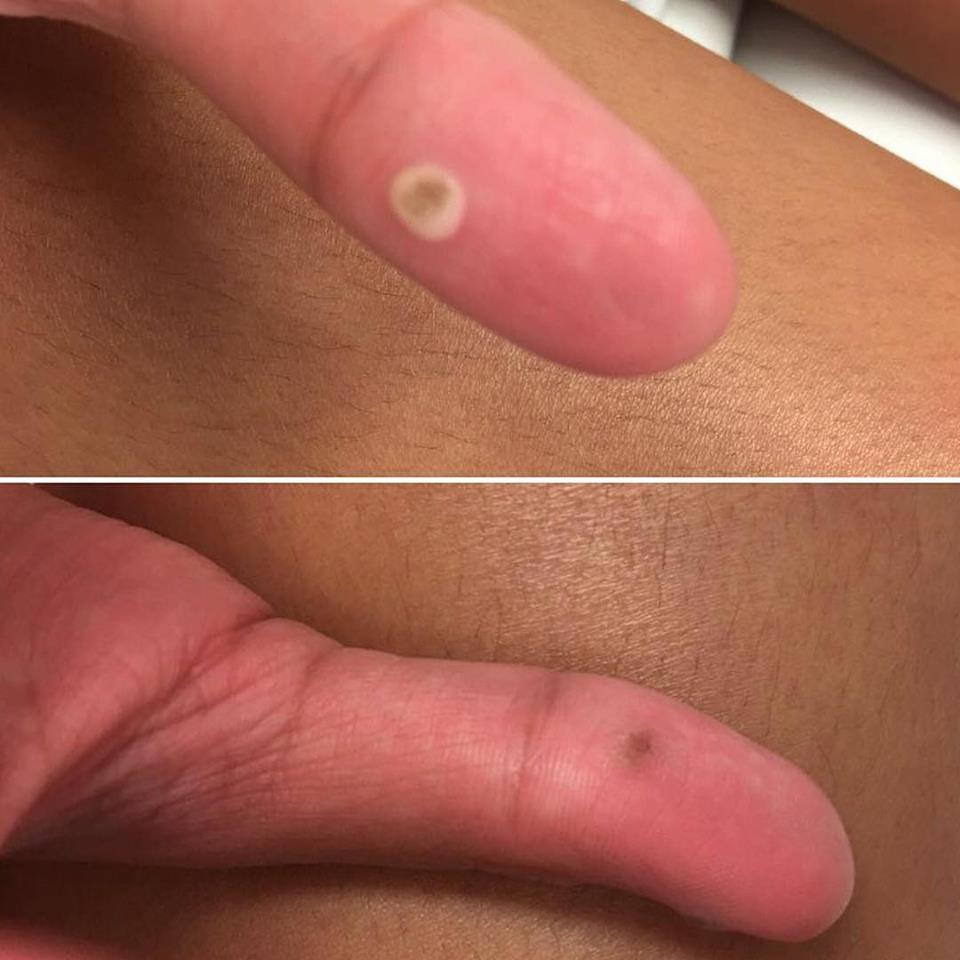 papilloma virus removal