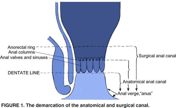 squamous papilloma rectal