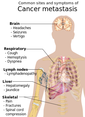 metastatic cancer and pain