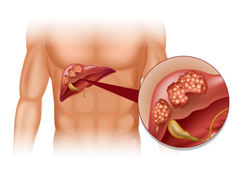cancer la ficat ultima faza simptome