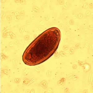 virus papiloma biodescodificacion reteta de detoxifiere cu orez si scortisoara
