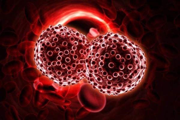 schneiderian papilloma with dysplasia intraductal papilloma core biopsy